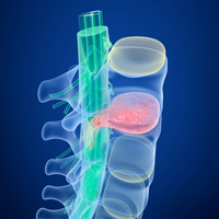 Columbia Truck Accident Lawyers weigh in on spinal cord injuries caused by truck accidents.
