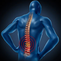 Columbia Workers' Compensation Lawyers discuss worker spinal cord injuries.